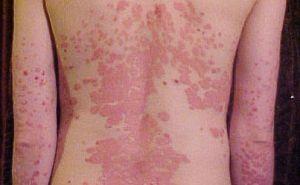 pikkelysömör kezelésének címe vörös foltok a szőr eltávolítása után a lábakon