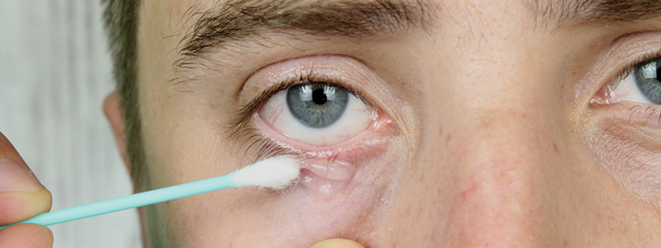 szem pikkelysömör kezelése