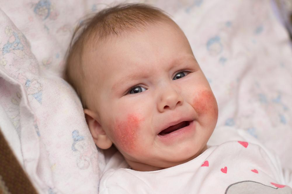 vörös foltok jelennek meg az arcon, a bőr hámlik viszket pikkelysömör kibaszott ujjak kezelése