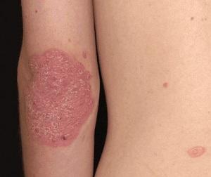 a pikkelysömör kezelése menstruációval történik