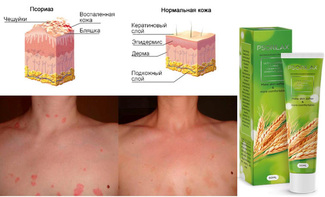 Paraffinos kézápolás menete - A száraz bőr kezelése és okai