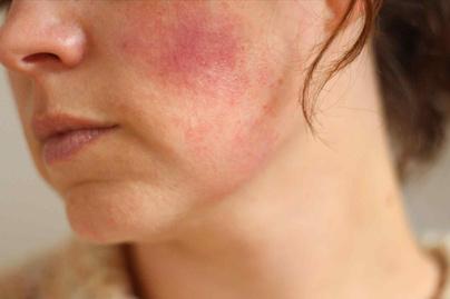 Hidegallergia: diagnózis, kiváltó okok, kezelés
