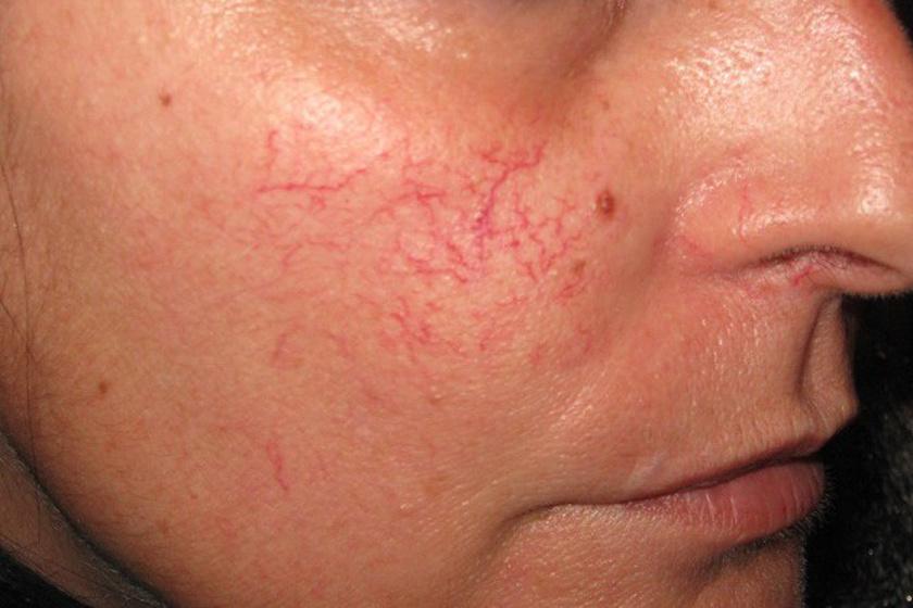 hogyan kezeljük az arcon lévő vörös foltokat otthon