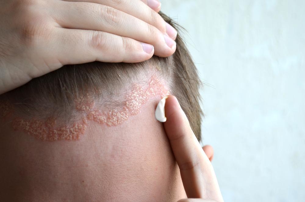 gyógynövények pikkelysömörre a fejen szilikonos készítmények pikkelysömörhöz