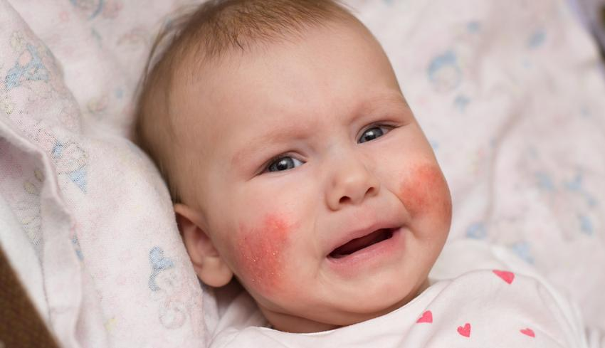 vörös foltok jelennek meg az arcon az idegektől