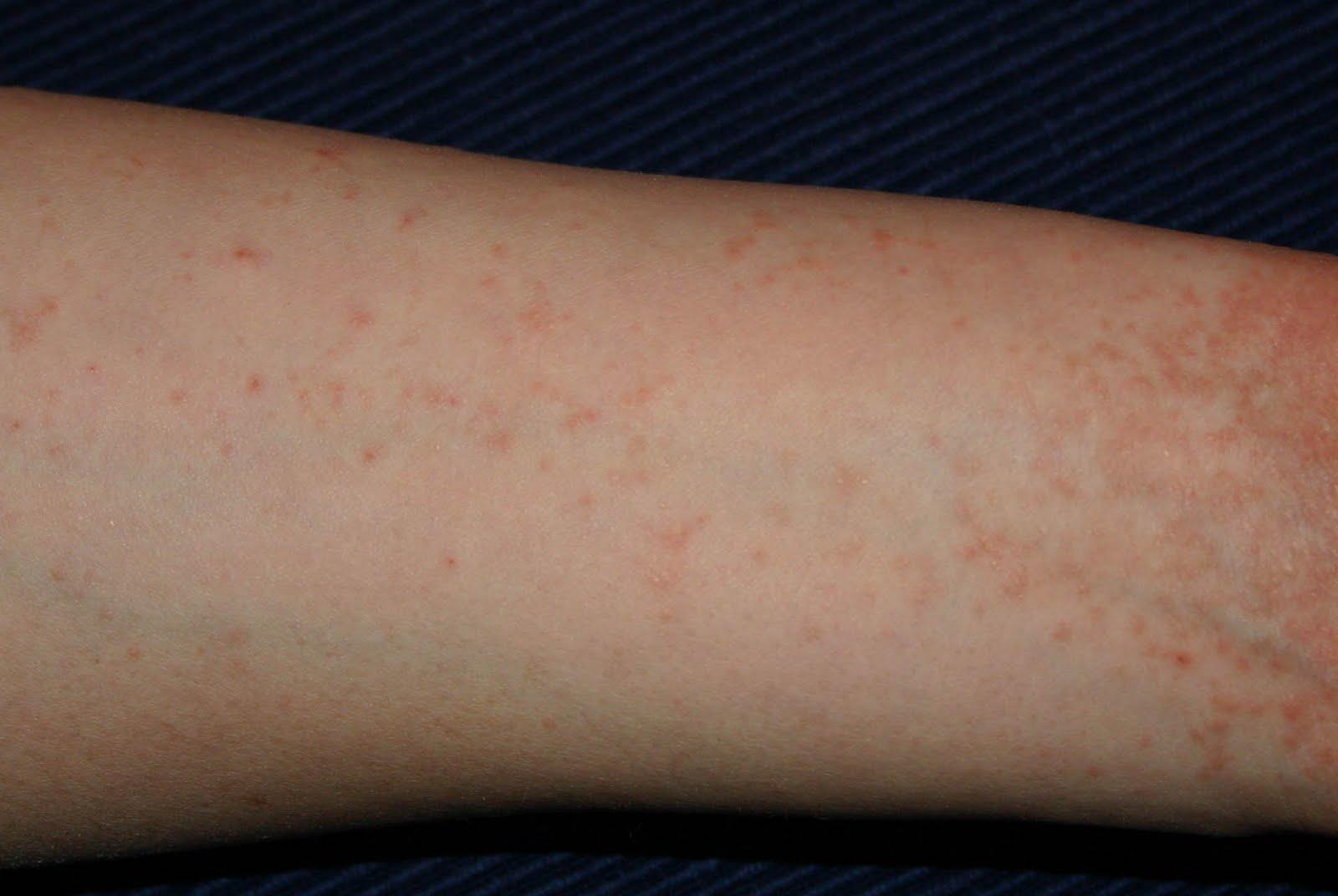 a fürdés után vörös foltok jelentek meg a lábakon