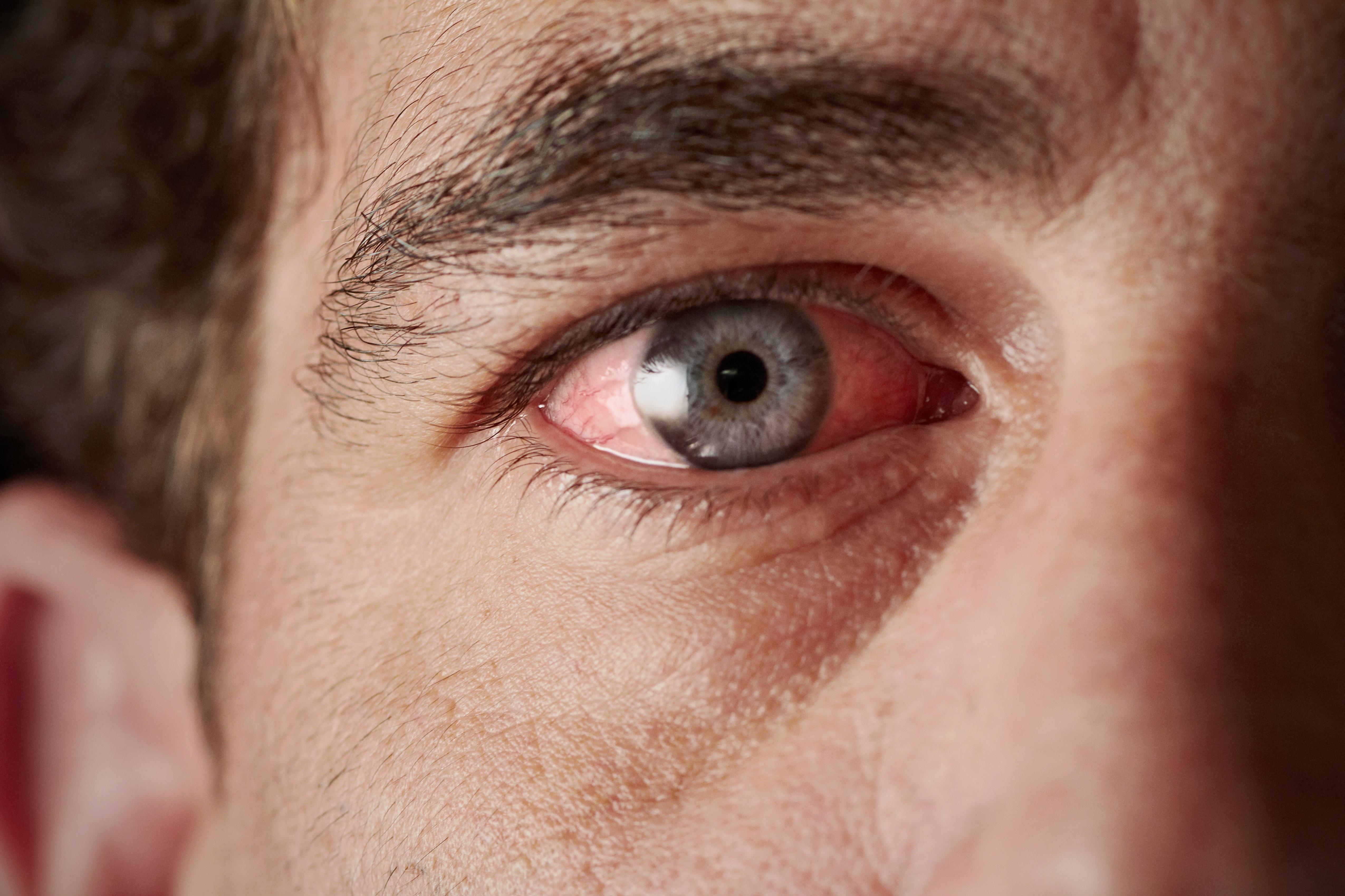 ha a szem alatt vörös pikkelyes foltok vannak hogyan kaphat árajánlatot a pikkelysömör kezelésére