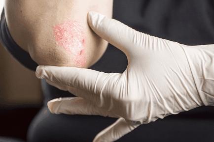 Pszoriázis a kezeken - fotó és a kezdeti szakasz kezelése - Tünetek