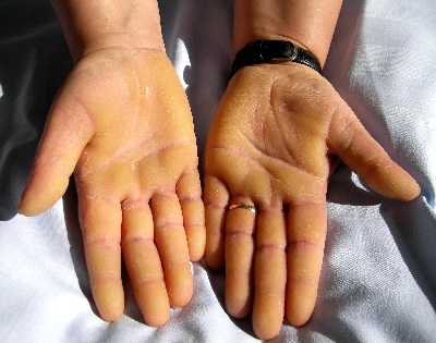 hóna alatt vörös foltok kezelése népi gyógymódokkal vörös viszkető foltok kezén