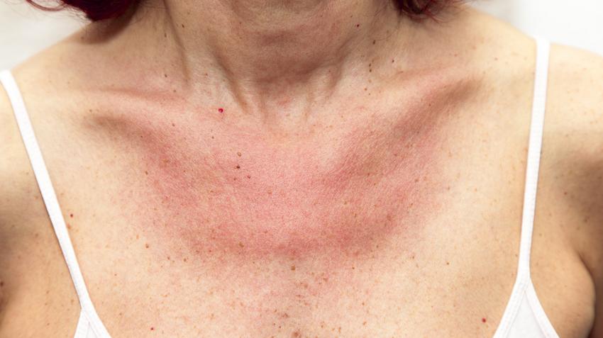 a nyakon lévő vörös foltok viszketést okoznak ulnaris pikkelysömör kezelésére kenőcs