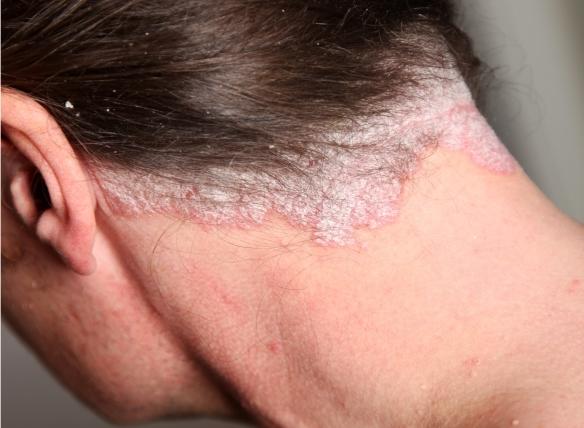 egy kis vörös folt jelent meg a bőr viszket krémek pikkelysömörre és seborrheara