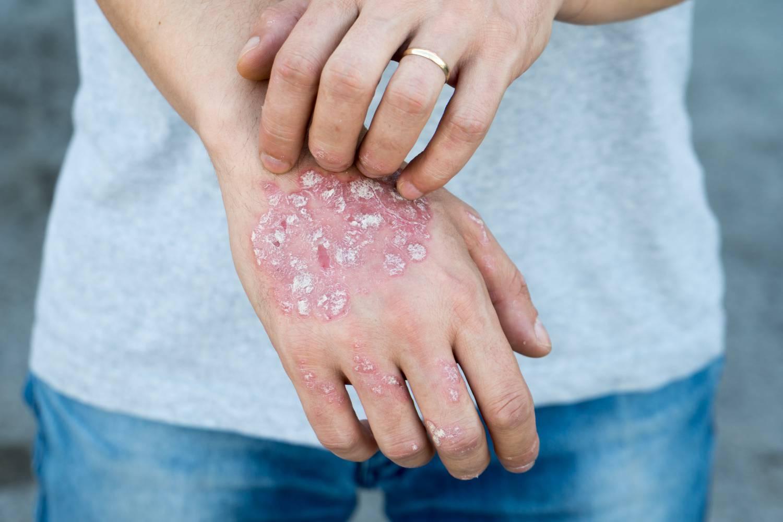 svatik pikkelysömör kezelése fenyőmag kezelik a pikkelysömör