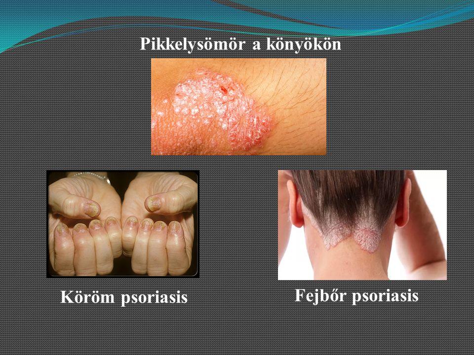 pikkelysömör kezelése antipsoriasis