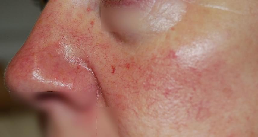 vörös foltok az orr körül, hogyan lehet eltávolítani