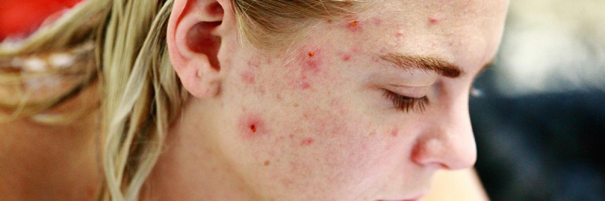 hogyan lehet eltávolítani a pangó vörös foltokat az arcon