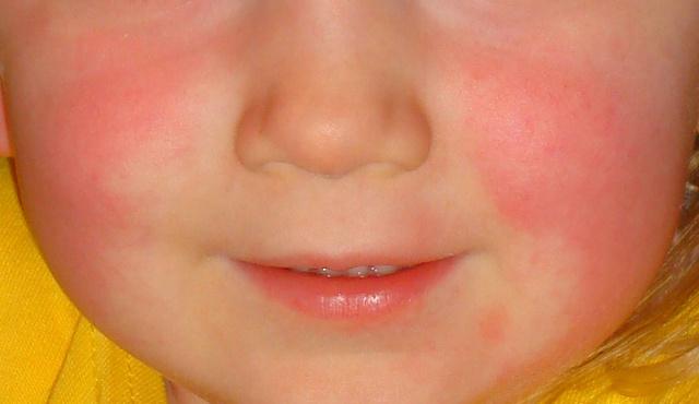 az arcon vörös folt az ajak alatt vörös foltok a testen, és hámozzák le, hogyan kell kezelni