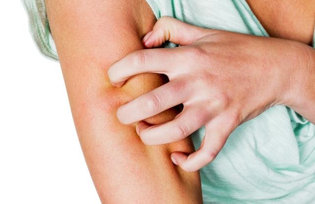 arckrém pikkelysömör ellen antitestek kezelése pikkelysömör vélemények