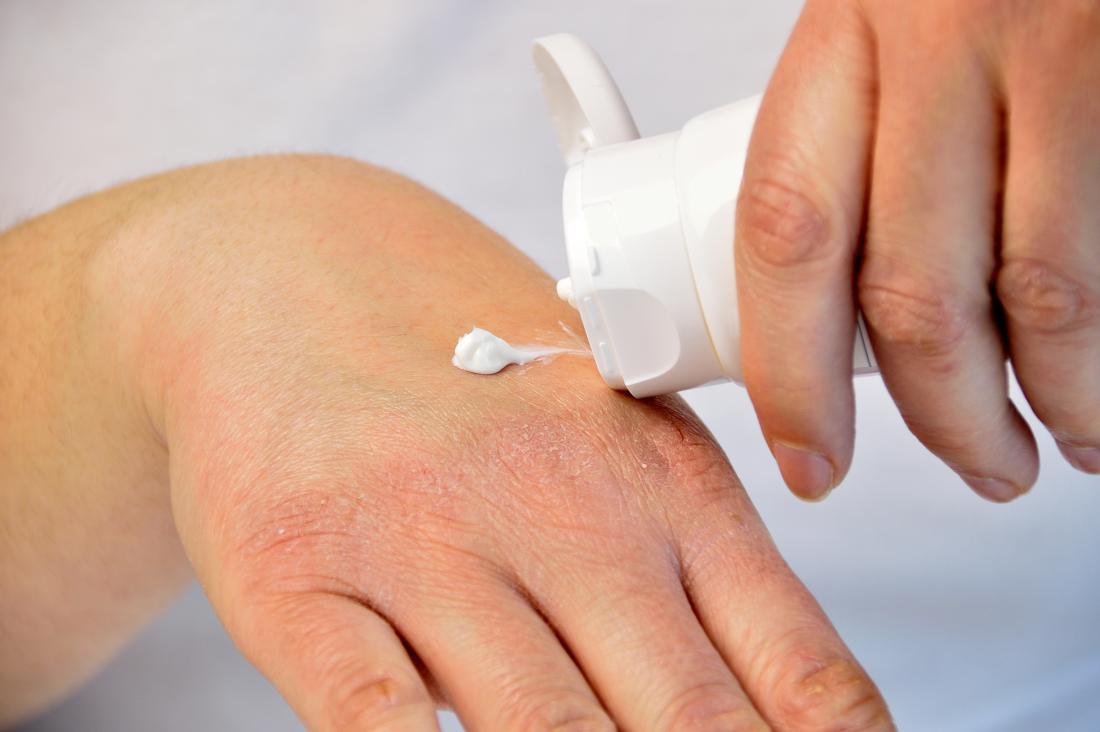 live water psoriasis kezelése