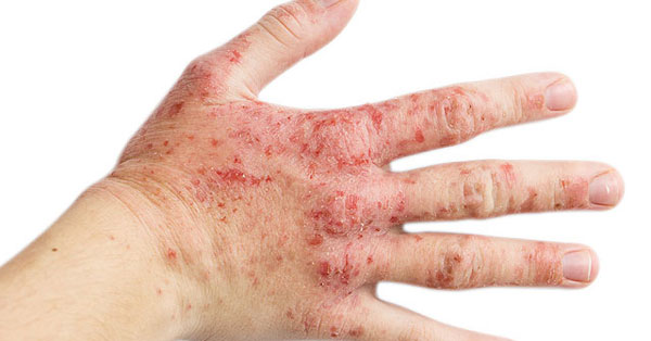 egy nagy piros folt a kézen pikkelysömör mit kell kezelni