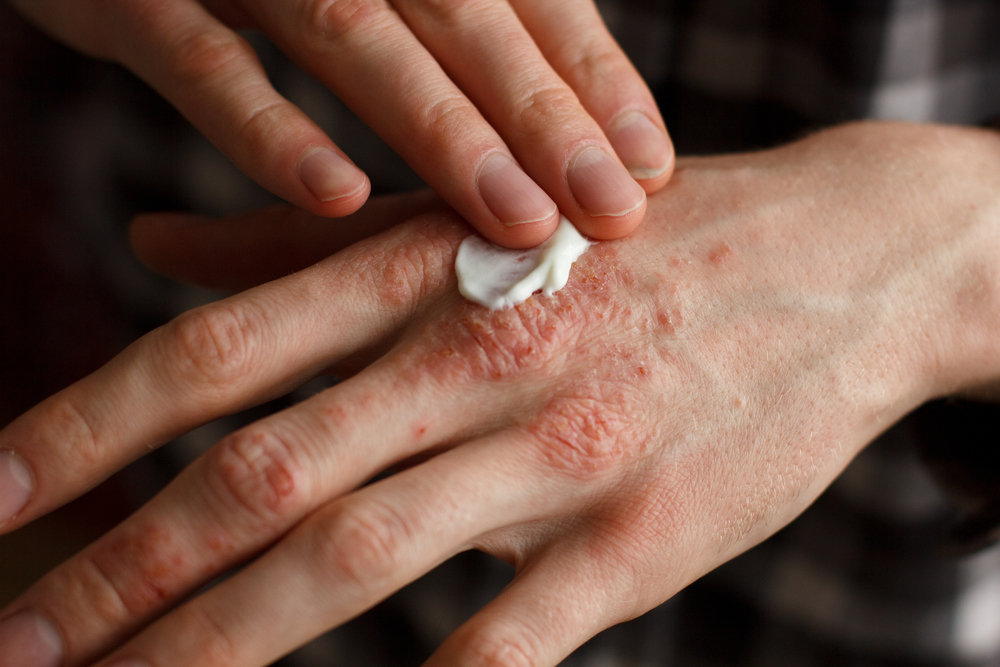 gyógyszerek pikkelysömör kezelésére krém gygynvnyek pikkelysömörre