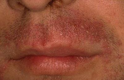 vörös foltok a szőr eltávolítása után a lábakon
