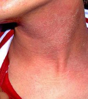 HIV vörös foltok az arcon)