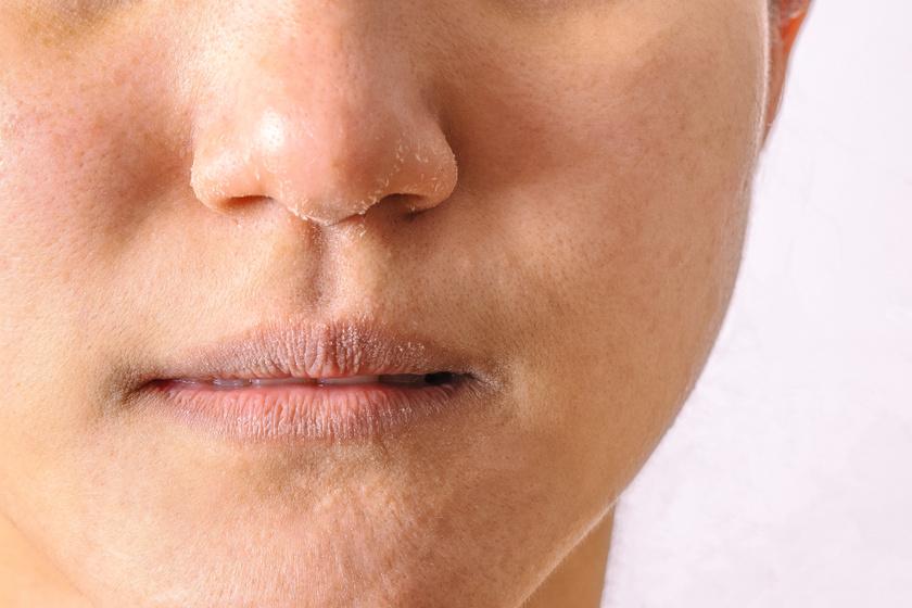 vörös foltok az orr hegyén viszketnek a pikkelysömör legújabb kezelései