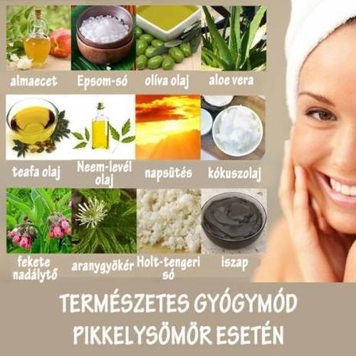 természetes gyógymód a pikkelysömörhöz
