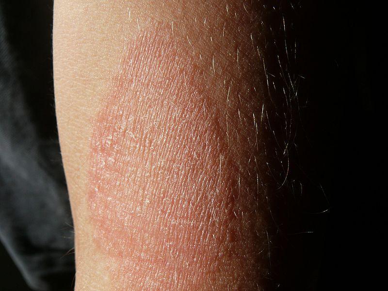 vörös foltok a karokon és a hónaljon