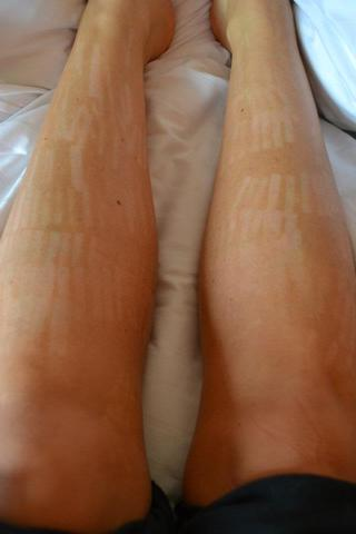 Cukorbetegség esetén a láb duzzadt, és egy piros folt jelenik meg.