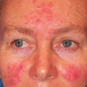 Eucerin®: A bőrről   Rosaceára és couperosára hajlamos bőr