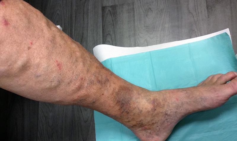 piros viszkető foltok fotó hova menjünk pikkelysömör kezelésére
