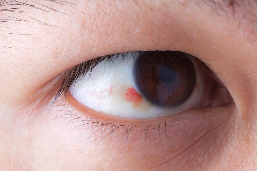 hogyan kell kezelni a szeméremrész vörös foltjait