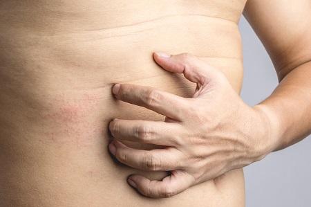 miért vörös foltok a gyomorban