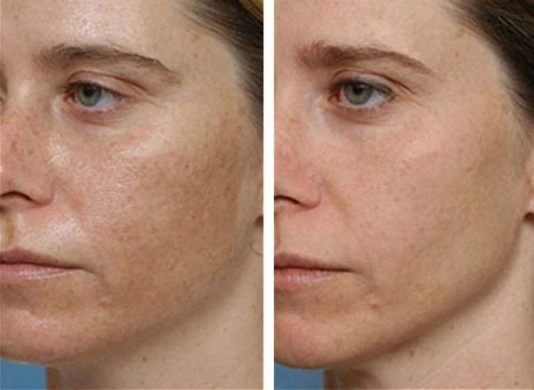Hogyan lehet hatékonyan eltávolítani a vörös foltok után pattanások