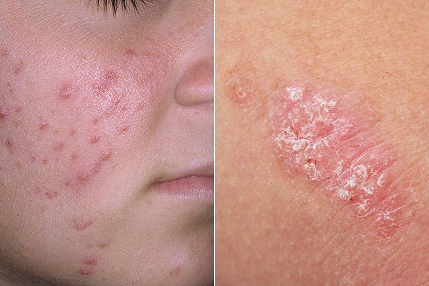Vitaminhiányra utaló bőrtünetek |