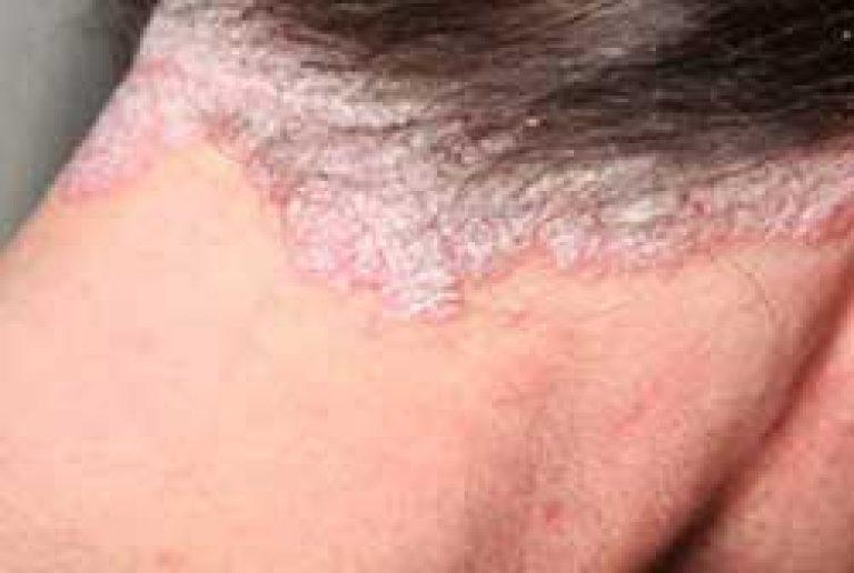 vörös foltok jelentek meg a testen és lehámozódtak
