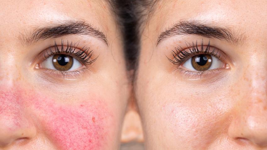 hogyan lehet gyógyítani az arcon lévő vörös foltokat seborrheás pikkelysömör kezelése az arcon