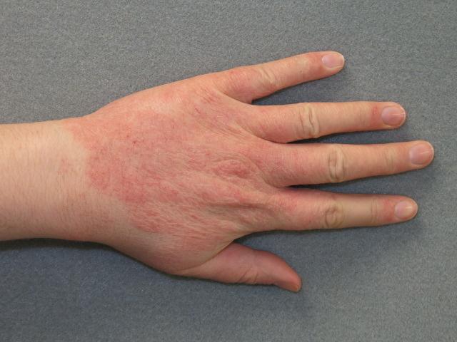 Viszketés a kezén a csuklójától a könyökig - okokból, mint hogy kezeljék - Tünetek
