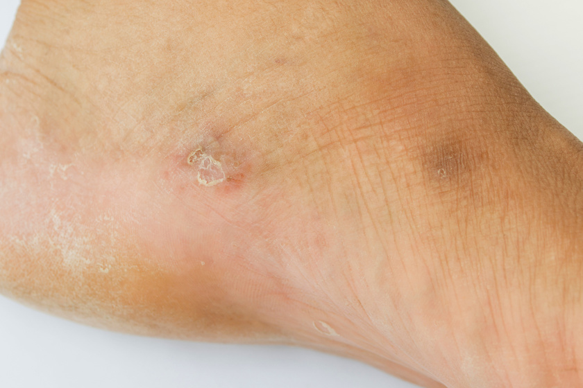 hámló bőr a lábakon vörös foltok