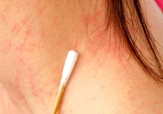 a fej hátsó részén vörös folt és viszkető fotó látható vörös foltok okai az arcon