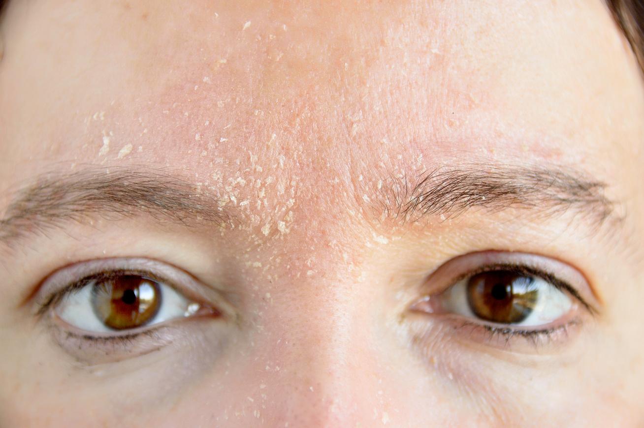 a menstruáció előtt vörös foltok jelennek meg az arcon vörös folt, mint egy anyajegy az arcon