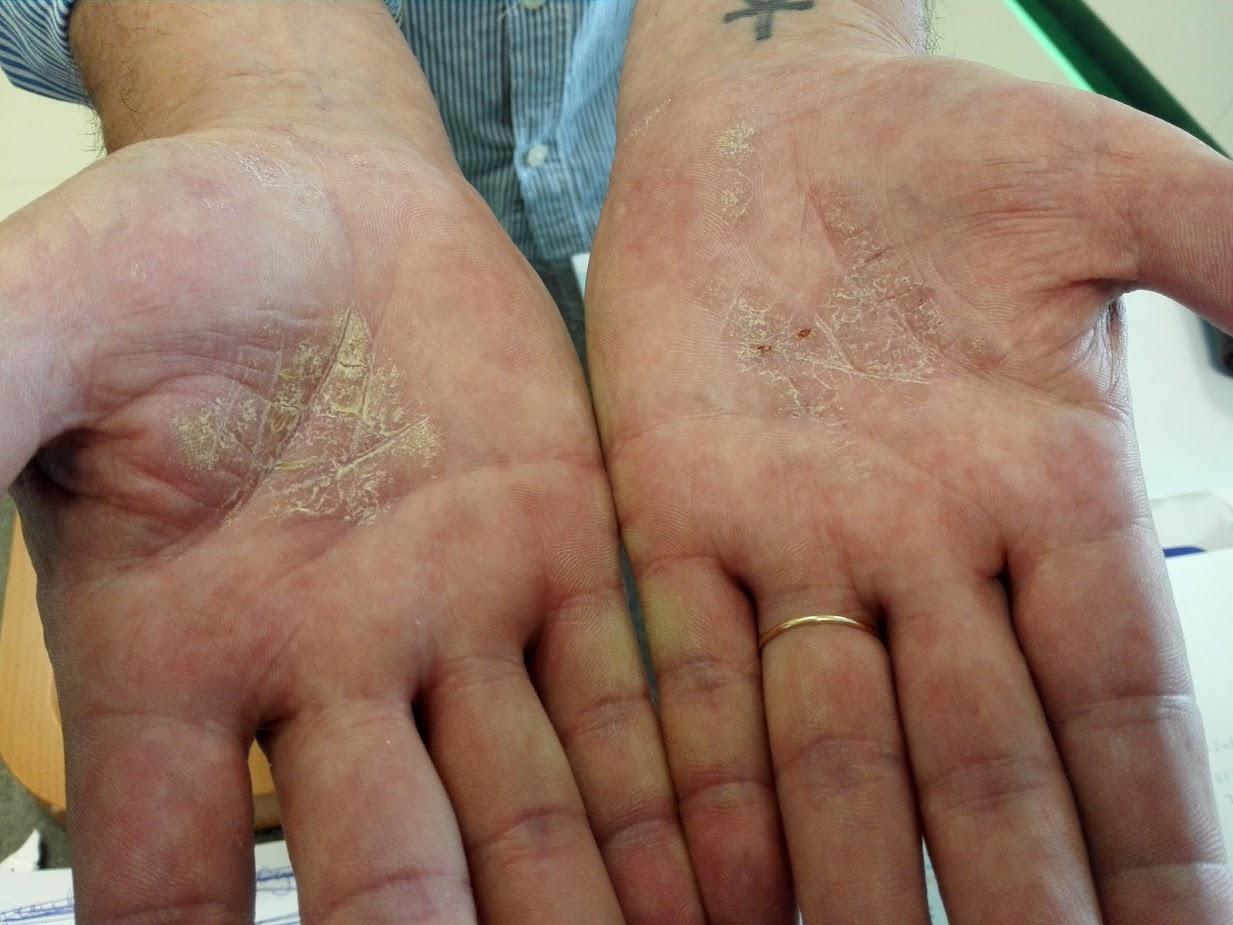 a kezek bőrén lévő foltok vörös hámlanak