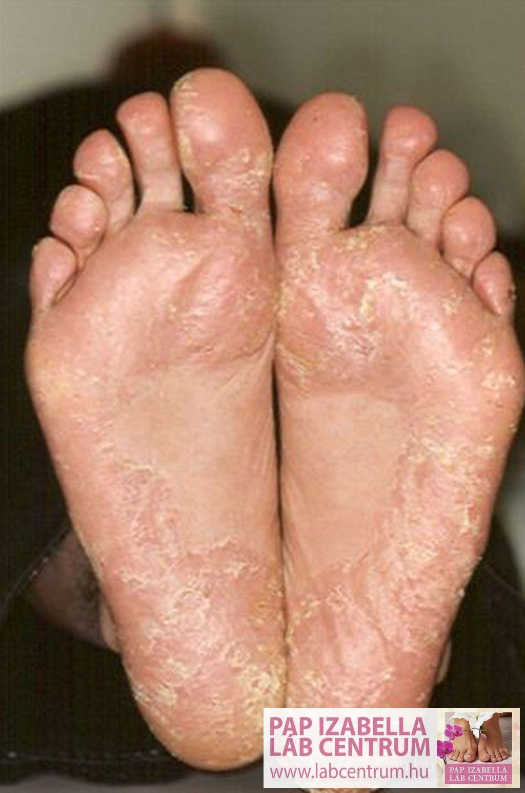 george pegano pikkelysömör kezelése pikkelyes vörös kerek foltok a lábakon