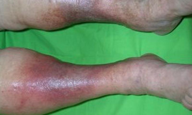 a lábakon lévő vörös foltok visszeres kezelése