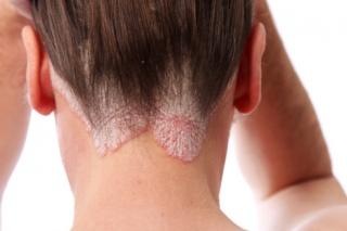 állítások a pikkelysömörhöz hogyan lehet az arcon pikkelysömör gyógyítani?