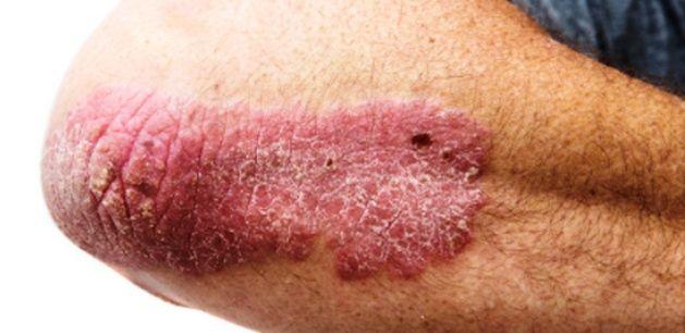 egészséges bőr pikkelysömör