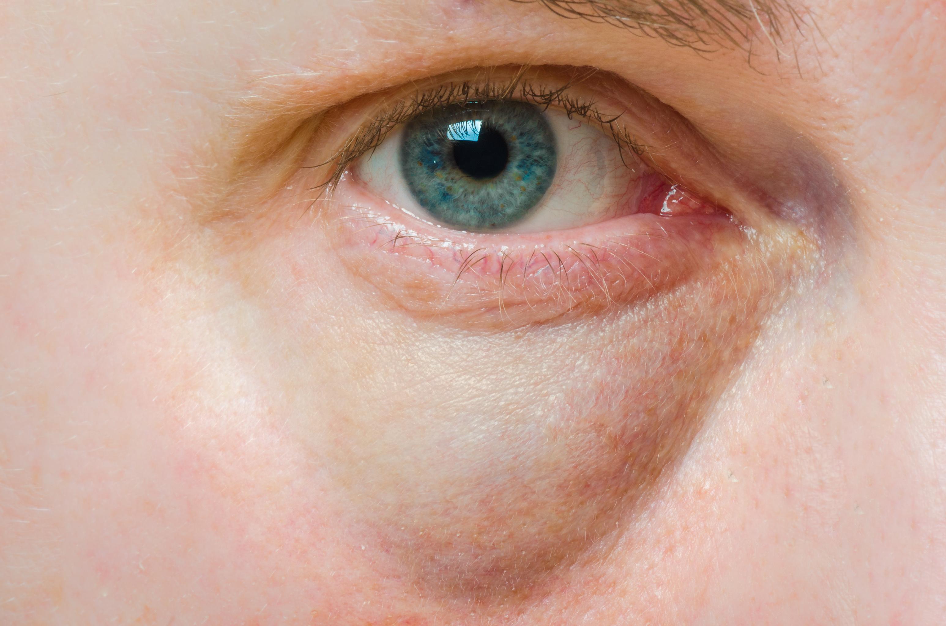 vörös foltok a szem alatt viszketik mi ez