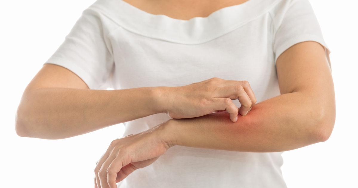 vörös foltok a karokon és a hónaljon pikkelysömör kezelése szódás ételekkel kapcsolatos véleményekkel