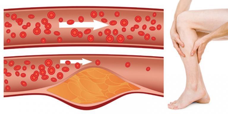 A rettegett bőrbetegség: pikkelysömör | Gyógyszer Nélkül